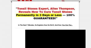 How To Cure Tonsil Stones – How to Cure Tonsil Stones