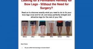 Bow Legs No More – How to Straighten Your Legs Without Surgery!