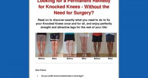 Knocked Knees No More – How to Straighten Your Legs Without Surgery!